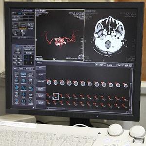 高次脳機能障害の認定のイメージ
